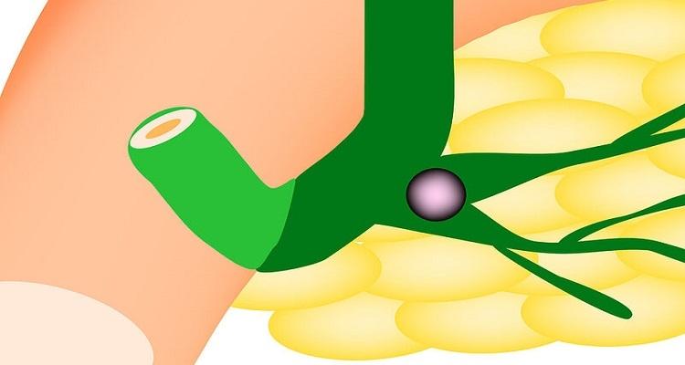 Επιστήμονες κατασκεύασαν χοληδόχο πόρο για την αποκατάσταση βλαβών στο ήπαρ